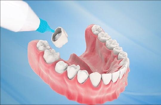 Bọc răng sứ là gì? Tổng quan những điều cần biết trước khi bọc răng sứ