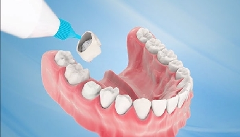 Bọc răng sứ là gì? Những điều cần biết trước khi làm răng sứ