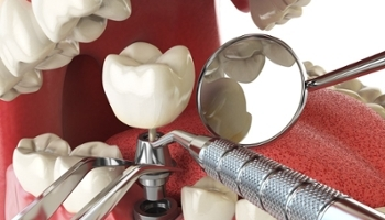 Lưu ý sau khi trồng răng Implant