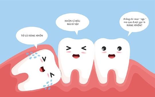 #4 điều cần biết trước khi điều trị răng khôn