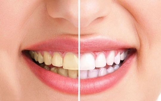Cao răng là gì? Quy trình lấy cao răng đạt chuẩn và những điều cần biết