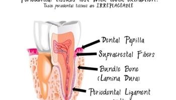 Sự khác biệt giữa răng thật và implant nha khoa