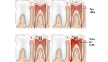 Điều trị tủy răng là gì? Có đau không? Điều cần lưu ý khi chữa tủy răng