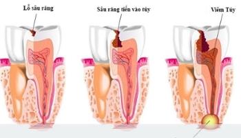 Phân biệt viêm tủy hồi phục và viêm tủy không hồi phục