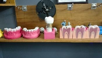 Xu thế in 3D trong Nha khoa