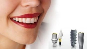 Cấy ghép Implant là gì? Giải đáp những thắc mắc về phẫu thuật cấy ghép Implant