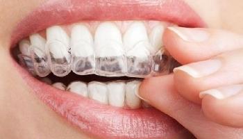 Khám phá những điểm nổi bật của niềng răng Invisalign
