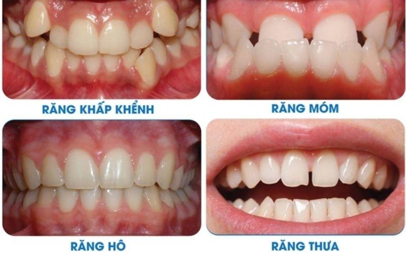 Tình trạng răng