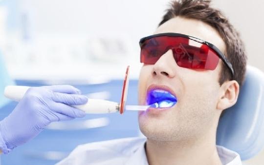 Quy trình tẩy trắng răng có gây hại không? Tần tật những điều cần biết về tẩy trắng răng